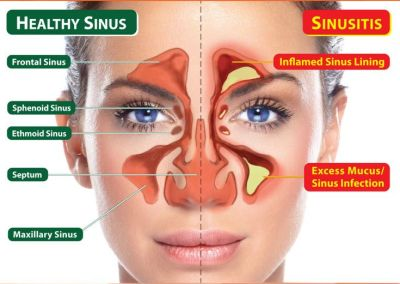 Nasal Care Pulse [nacap] : Altered States!, Informing The World